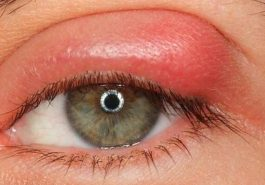 Obat sakit mata bengkak - Penyebab Mata Bengkak
