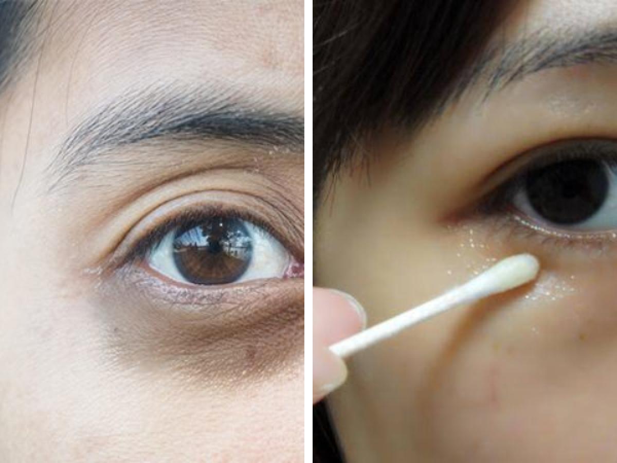 Cara Mudah Menghilangkan Kantung Mata Dan Lingkaran Hitam Dafunda Cara